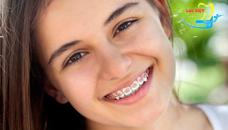 kết quả điều trị niềng răng khấp khểnh