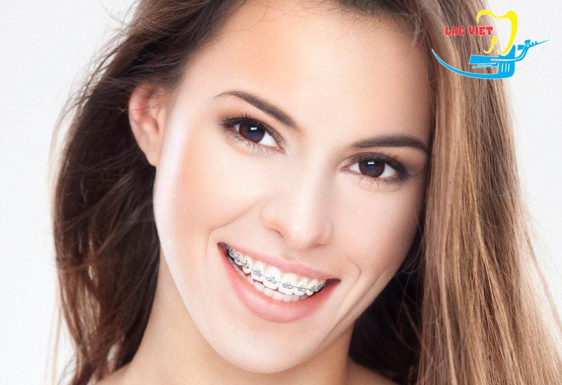niềng răng mắc cài kim loại phổ biến nhất