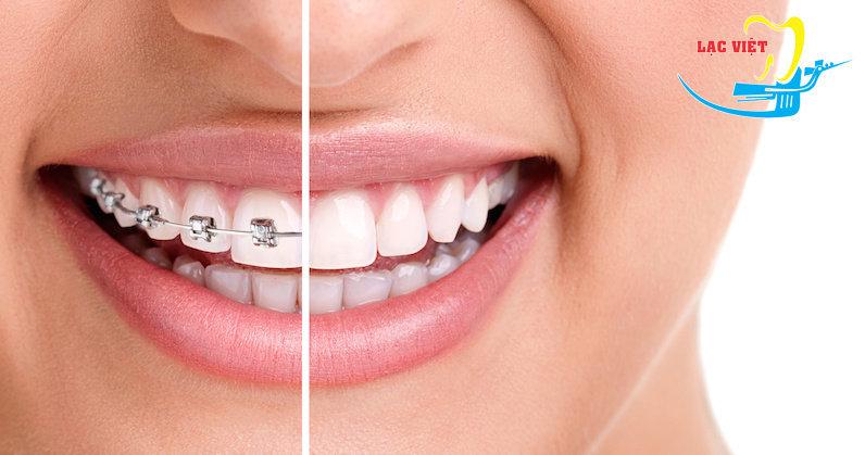 niềng răng móm bằng phương pháp mắc cài mặt ngoài