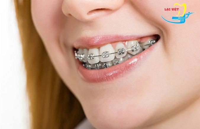 niềng răng thưa bằng phương pháp mắc cài