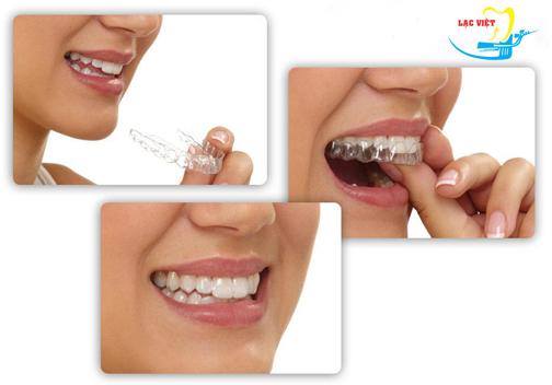 niềng răng thưa bằng công nghệ invisalign