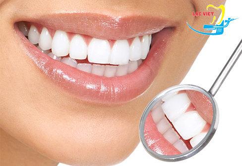 thành quả sau quá trình điều trị răng thưa tại lạc việt