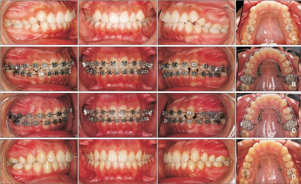 Một trường hợp niềng răng không nhổ răng nhờ kỹ thuật di xa răng cối lớn.