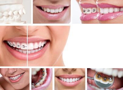 Các loại niềng răng.