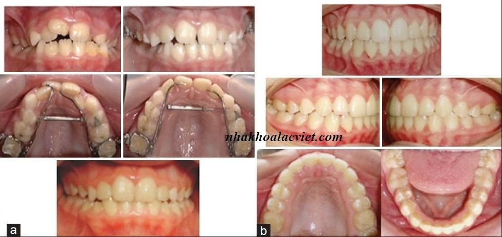 Một trường hợp niềng răng không nhổ răng nhờ sử dụng nong hàm 3D