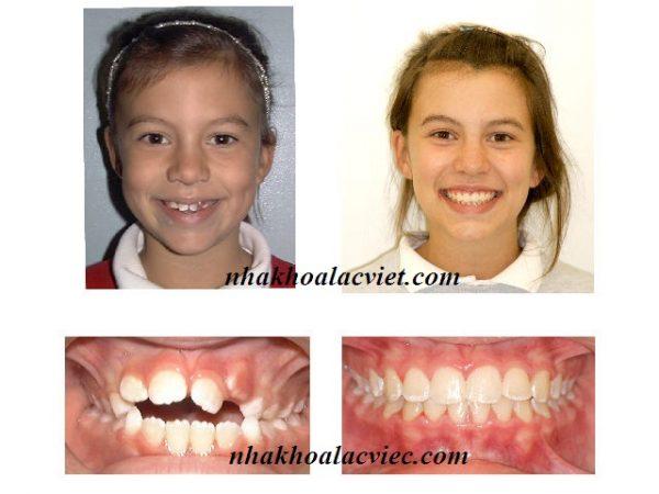 hình ảnh trước và sau khi niềng răng