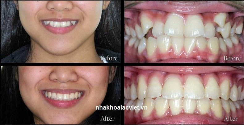 Hình ảnh trước và sau khi niềng răng khấp khểnh