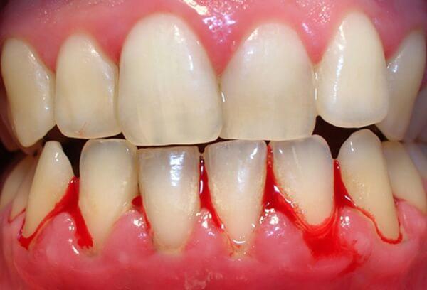 Không nên niềng răng khi bị viêm nha chu nặng