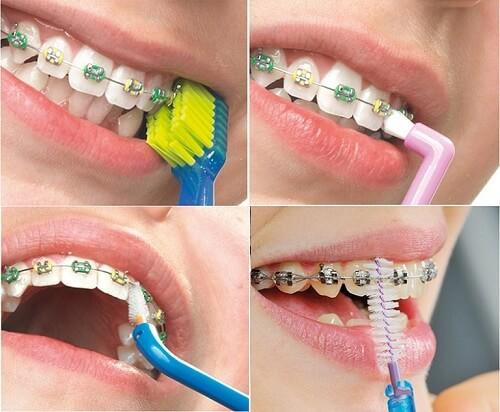 Chải răng đúng cách khi niềng răng mắc cài