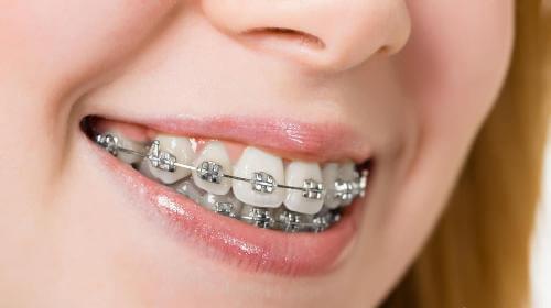 niềng răng đẹp