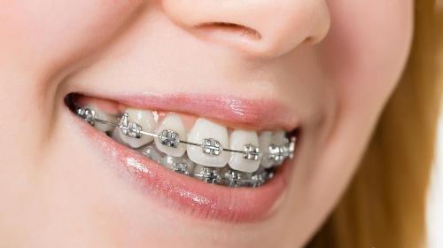 Niềng răng hô nhẹ có đau nhức không