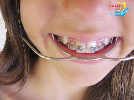 Niềng răng khểnh diễn ra như thế nào