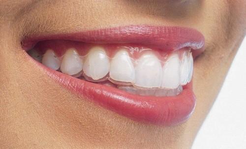Niềng răng không mắc cài có đau không