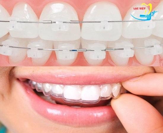 Các phương pháp niềng răng thẩm mỹ
