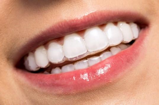 Niềng răng trong suốt là gì