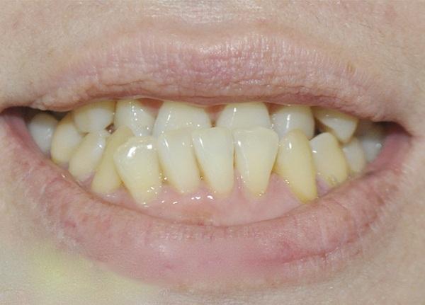 Răng móm nên bọc sứ hay niềng răng