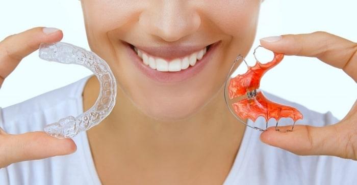 Các loại hàm duy trì sau niềng răng