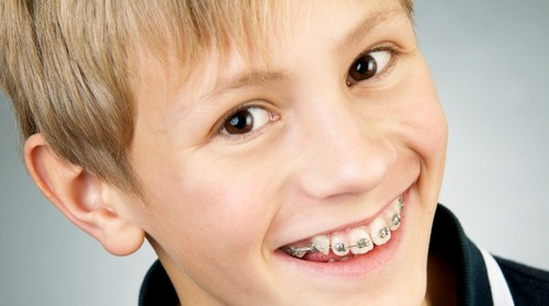 Dấu hiệu răng hô ở trẻ em