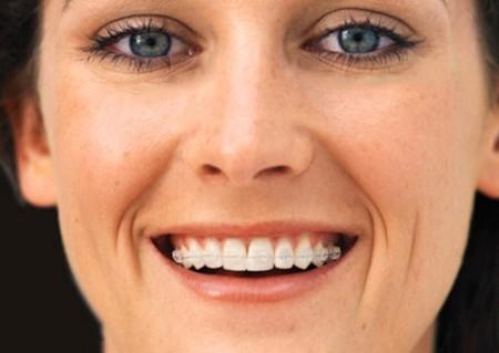 Tuổi tác có ảnh hưởng kết quả niềng răng không