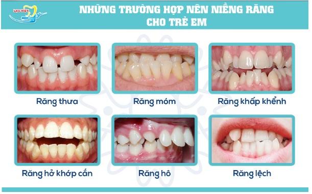 nieng-rang-cho-tre