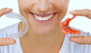 Đeo hàm duy trì sau niềng răng mất bao lâu?