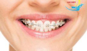 Niềng răng hô có nguy hiểm không?
