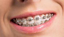 Tại sao nên niềng răng mắc cài tự đóng?