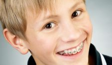 5 dấu hiệu nhận biết răng hô ở trẻ em