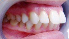 Răng hô nặng có niềng được không?