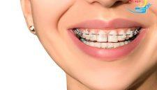 Nên bọc răng sứ hay niềng răng thưa?