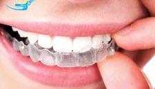 Niềng răng invisalign – bí mật của nụ cười hoàn hảo