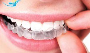 Niềng răng tháo lắp có tác dụng gì?