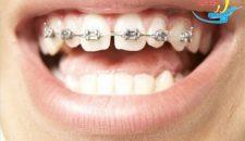 Niềng răng mắc cài tự đóng có hiệu quả không?