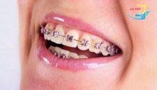 Niềng răng giá rẻ nhất là bao nhiêu tiền?
