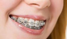 Răng hô là gì, nguyên nhân nào dẫn đến răng hô?