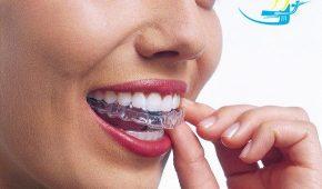 Niềng răng trong suốt có tốt không?