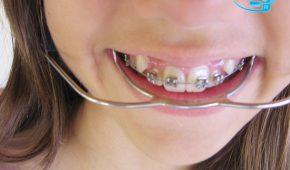 Niềng răng khểnh có đau không?