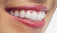 Tìm hiểu về niềng răng không mắc cài