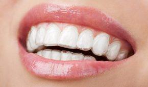 Niềng răng không mắc cài giá bao nhiêu tiền?