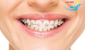 Niềng răng mắc cài tự đóng có tốt không?