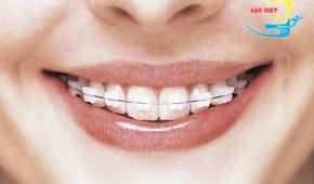 Niềng răng có hết hô hàm không?