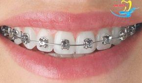 Niềng răng mắc cài tự đóng là gì?