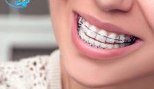 Các phương pháp niềng răng móm