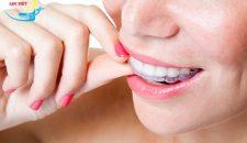 Ưu nhược điểm của niềng răng không mắc cài