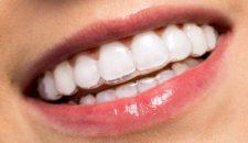 Quy trình niềng răng trong suốt
