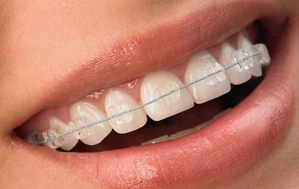 Niềng răng mắc cài pha lê giá bao nhiêu tiền?