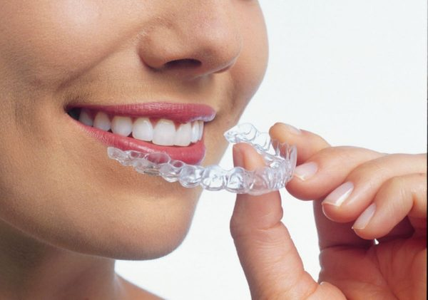 So sánh niềng răng invisalign và aligner