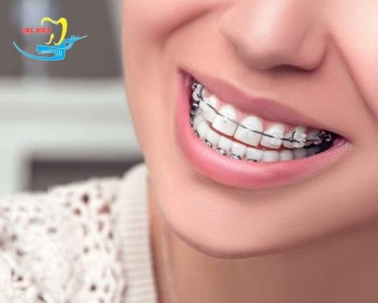 Niềng răng mắc cài kim loại có ưu khuyết điểm gì?