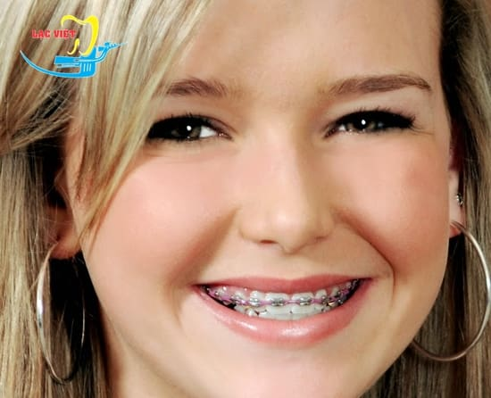 Niềng răng móm có hại không?