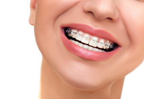 Chi phí niềng răng mắc cài kim loại